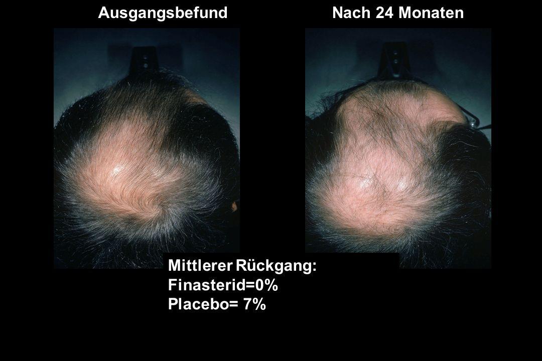 AusgangsbefundNach 24 Monaten Mittlerer Rückgang: Finasterid=0% Placebo= 7%