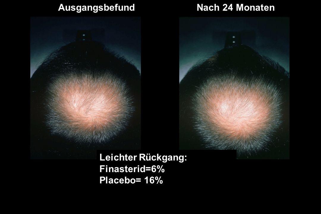 AusgangsbefundNach 24 Monaten Keine Veränderung: Finasterid=55% Placebo= 74%