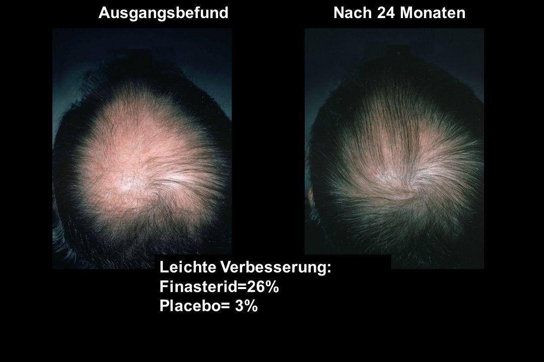 AusgangsbefundNach 24 Monaten Leichte Verbesserung: Finasterid=26% Placebo= 3%