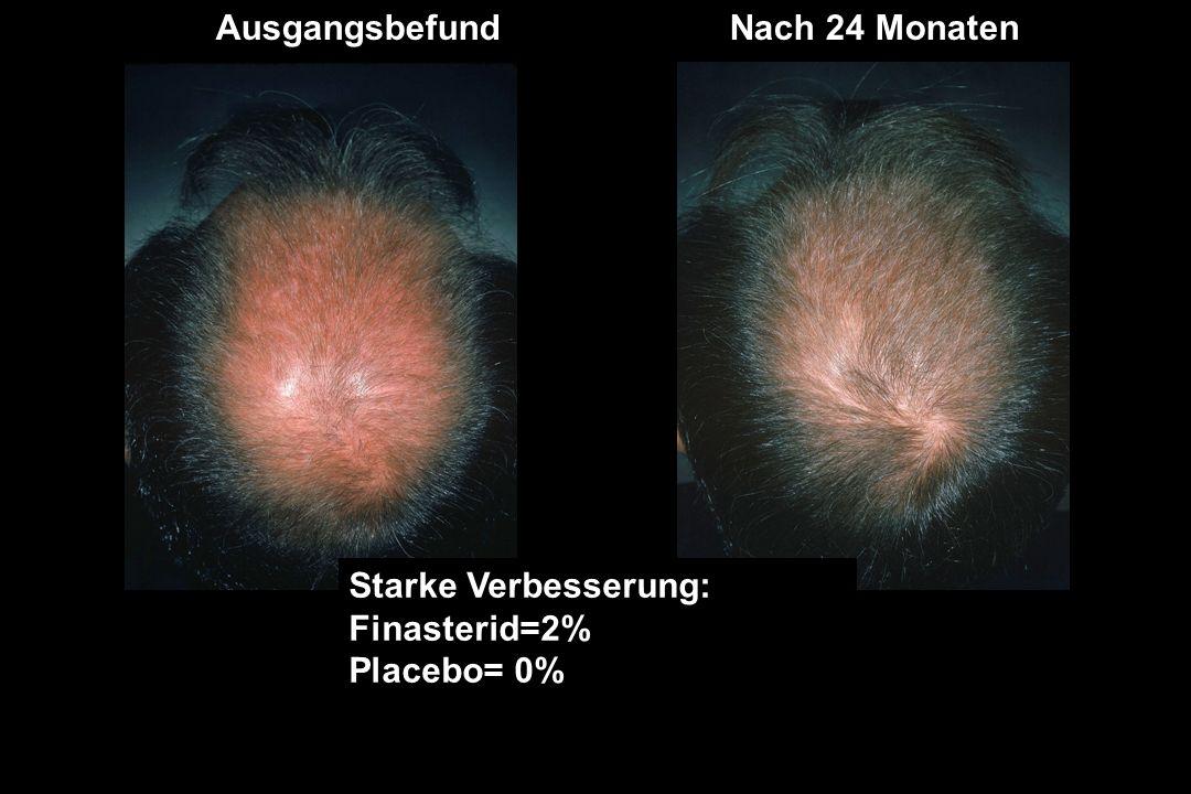 AusgangsbefundNach 24 Monaten Starke Verbesserung: Finasterid=2% Placebo= 0%