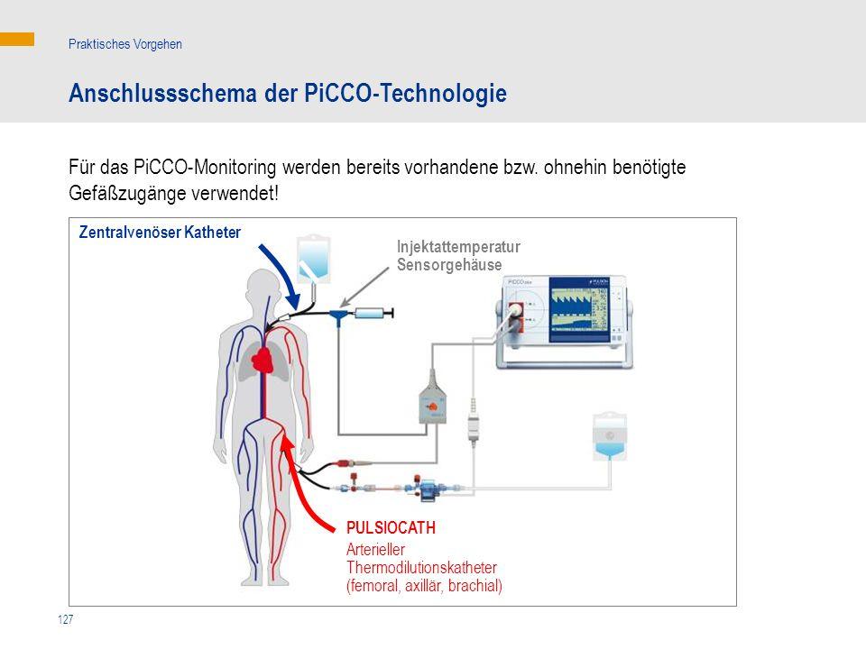 127 Für das PiCCO-Monitoring werden bereits vorhandene bzw. ohnehin benötigte Gefäßzugänge verwendet! Anschlussschema der PiCCO-Technologie Praktische