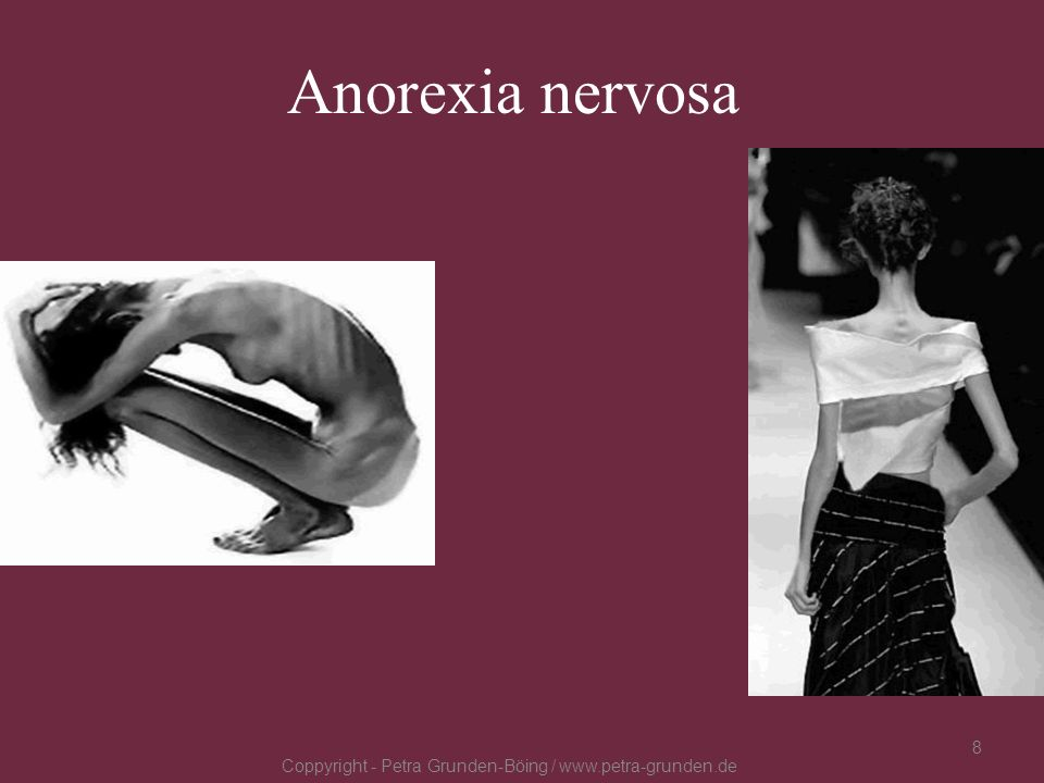Anorexia nervosa Coppyright - Petra Grunden-Böing / www.petra-grunden.de 8