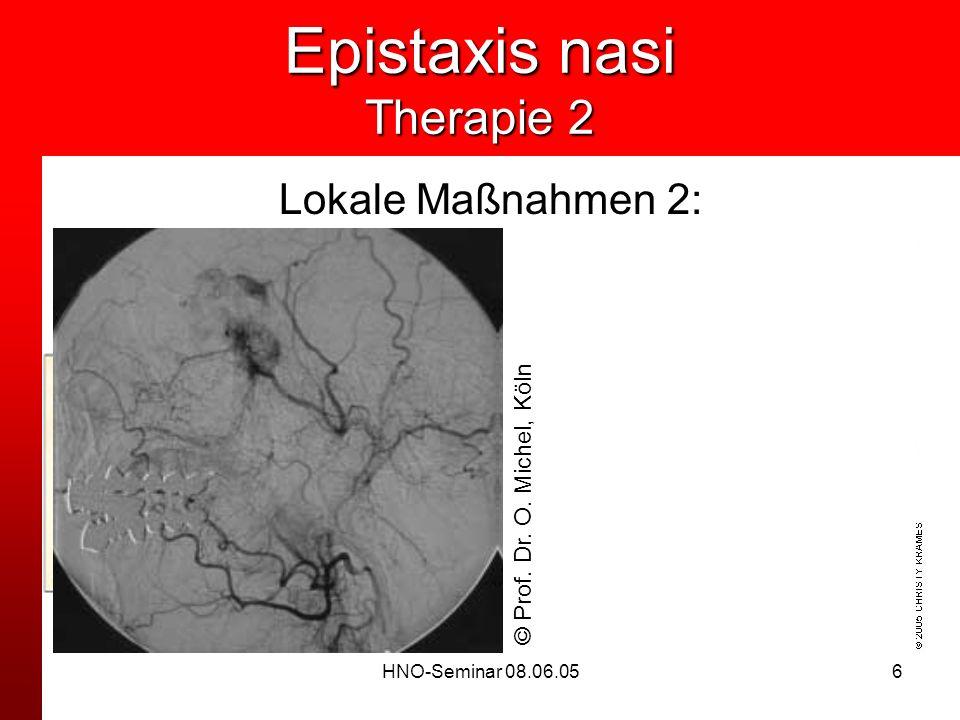 HNO-Seminar 08.06.056 Epistaxis nasi Therapie 2 Lokale Maßnahmen 2: Tamponade -Vordere Tamponade -Ballonkatheter -Hintere Tamponade (BELLOCQ) Operativ