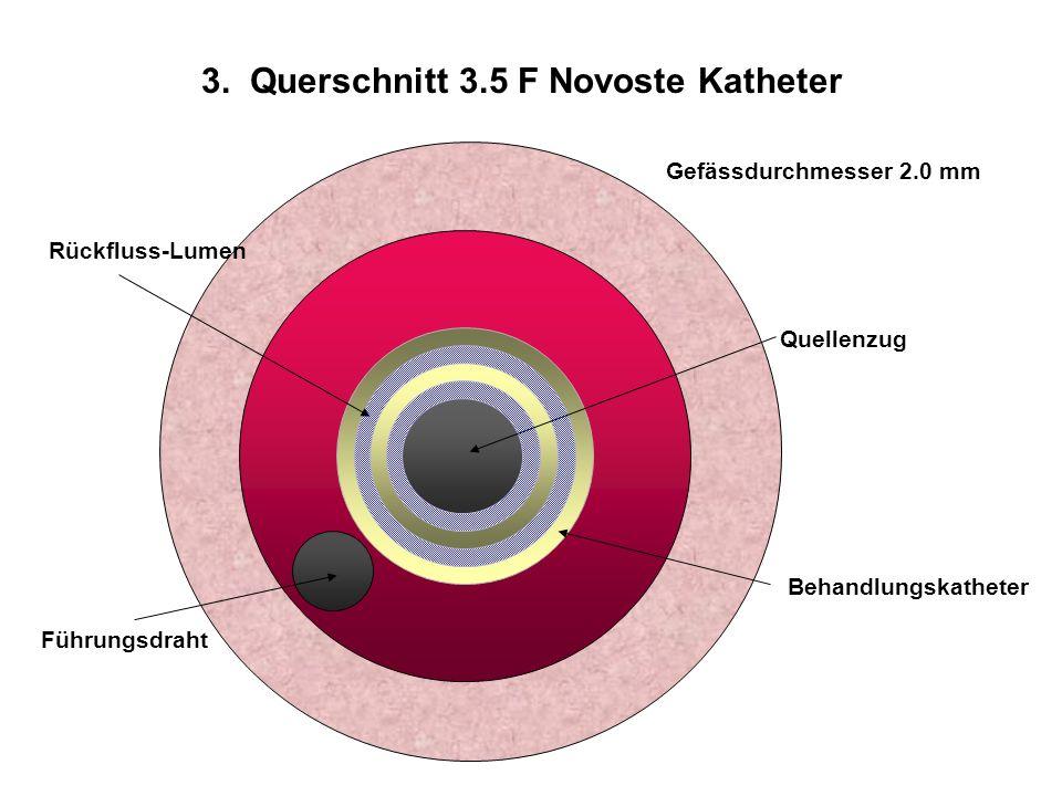 Quellenzug Gefässdurchmesser 2.0 mm Behandlungskatheter Führungsdraht Rückfluss-Lumen 3. Querschnitt 3.5 F Novoste Katheter