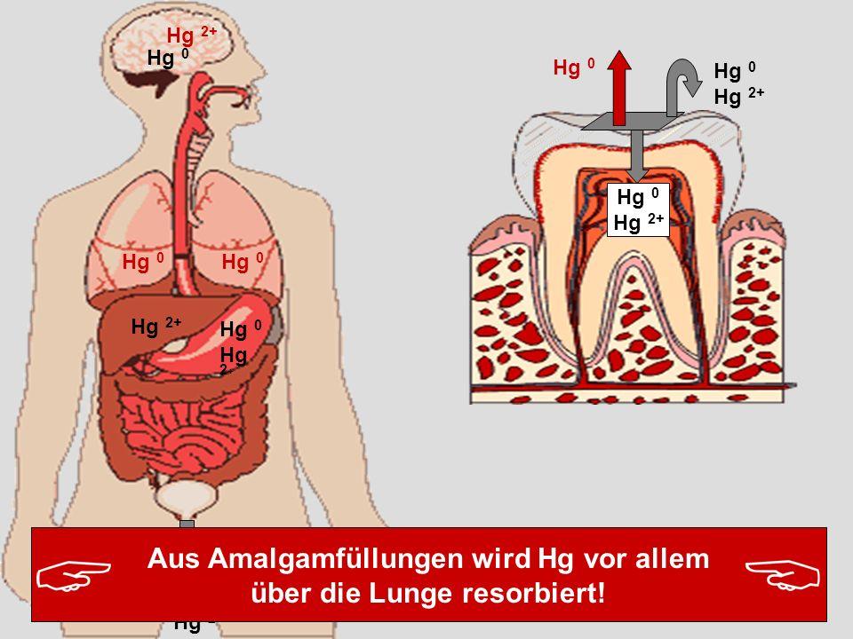 Hg 0 Hg 2+ Hg 0 Hg 2+ Hg 0 Hg 2+ Hg 0 Hg 2 + Aus Amalgamfüllungen wird Hg vor allem über die Lunge resorbiert!