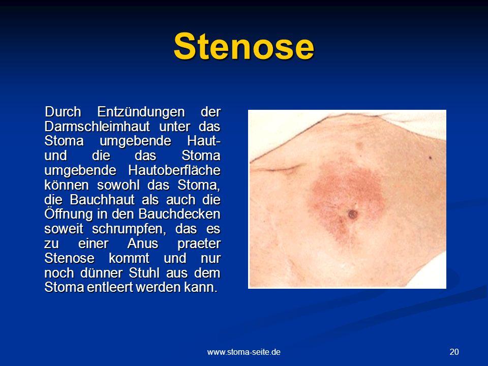 20www.stoma-seite.de Stenose Durch Entzündungen der Darmschleimhaut unter das Stoma umgebende Haut- und die das Stoma umgebende Hautoberfläche können
