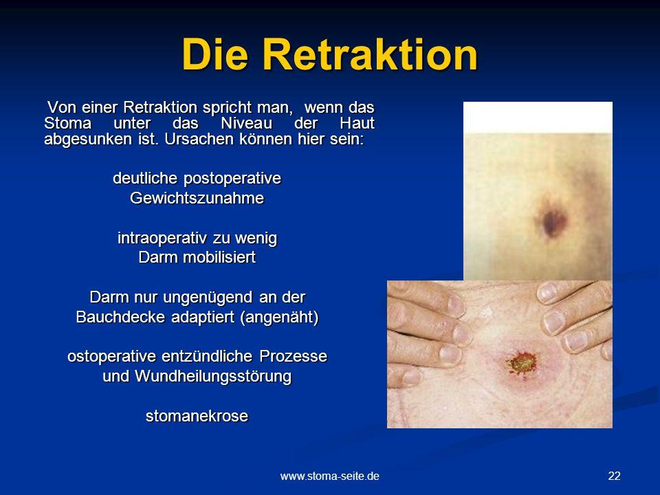 22www.stoma-seite.de Die Retraktion Von einer Retraktion spricht man, wenn das Stoma unter das Niveau der Haut abgesunken ist. Ursachen können hier se