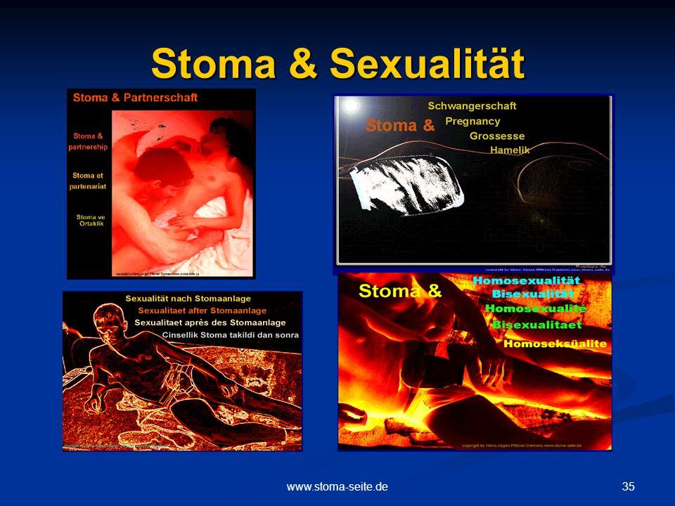 35www.stoma-seite.de Stoma & Sexualität