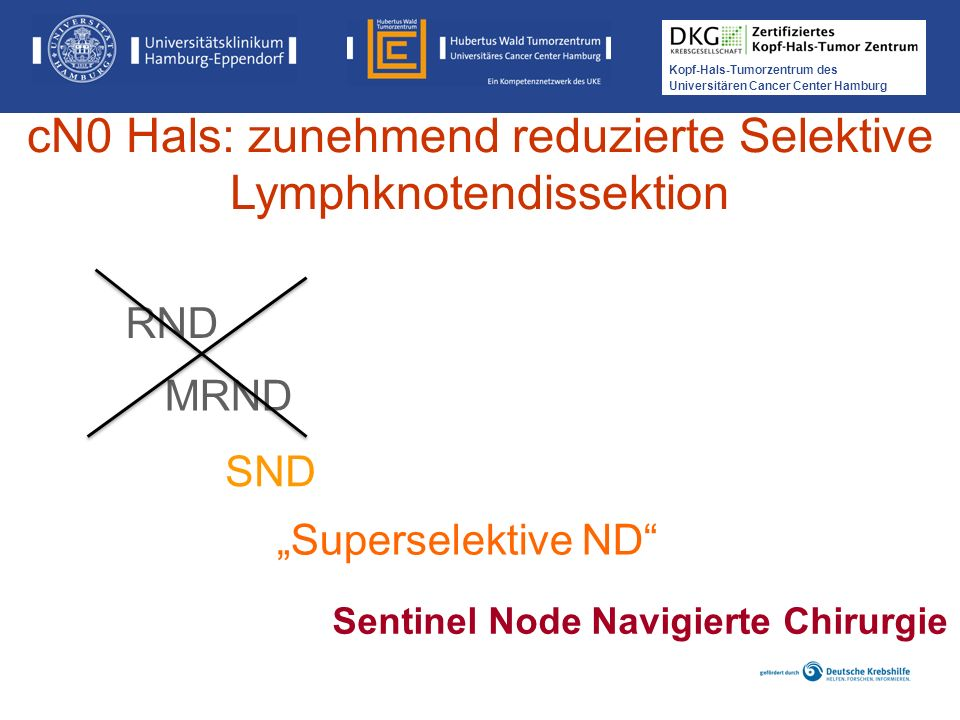 Kopf-Hals-Tumorzentrum des Universitären Cancer Center Hamburg Sentinel Node Navigierte Chirurgie SND MRND Superselektive ND cN0 Hals: zunehmend reduz