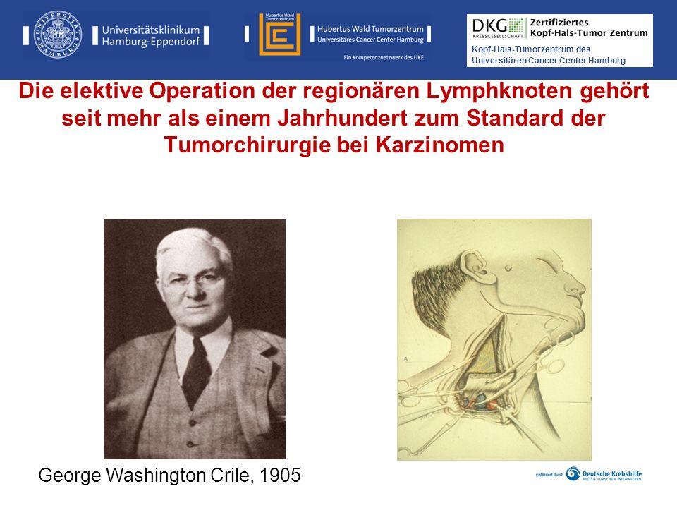 Kopf-Hals-Tumorzentrum des Universitären Cancer Center Hamburg Die elektive Operation der regionären Lymphknoten gehört seit mehr als einem Jahrhunder