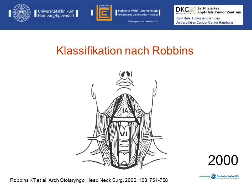 Kopf-Hals-Tumorzentrum des Universitären Cancer Center Hamburg 2000 Robbins KT et al. Arch Otolaryngol Head Neck Surg. 2002; 128: 751-758 Klassifikati