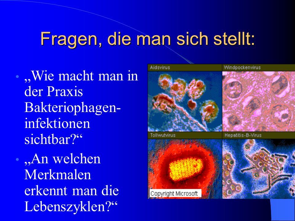 Fragen, die man sich stellt: Wie macht man in der Praxis Bakteriophagen- infektionen sichtbar.