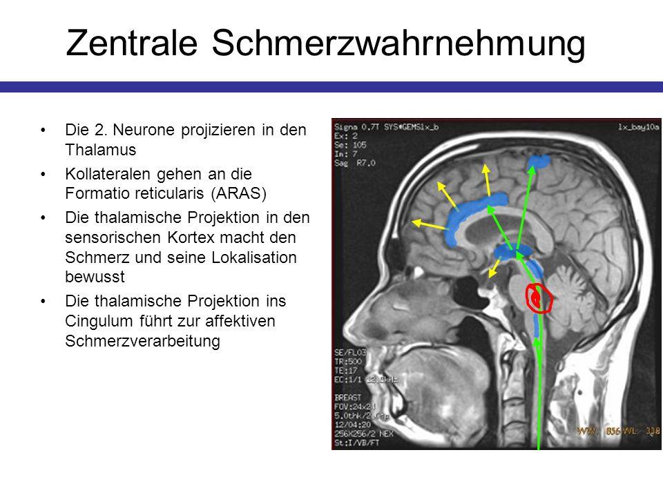 Zentrale Schmerzwahrnehmung Die 2. Neurone projizieren in den Thalamus Kollateralen gehen an die Formatio reticularis (ARAS) Die thalamische Projektio