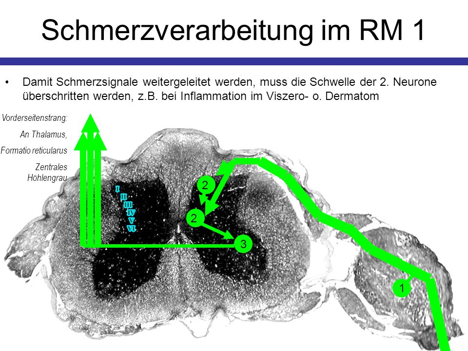 Bedrohliche Kopfschmerzen StörungTypische BefundeHäufigkeit MeningitisNackensteifigkeit, subakut progredienter Kopfschmerz, Photophobie, u.U.