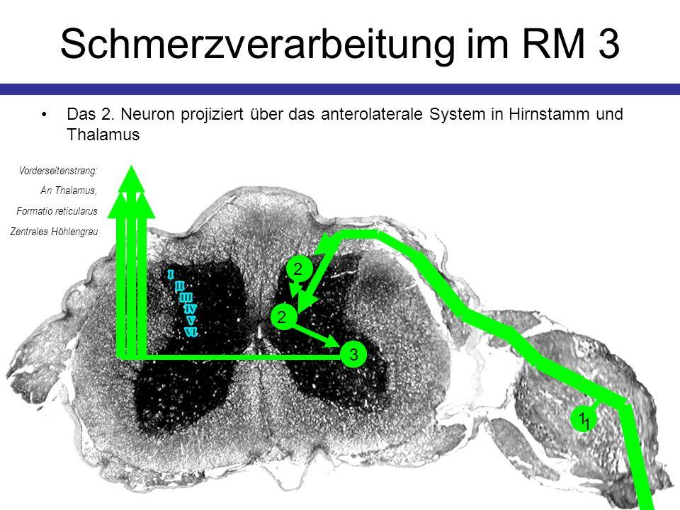 Schmerzverarbeitung im RM 4 Höhere Zentren erhöhen die Schwelle durch Aktivierung enkephalinerger Neurone der Substantia gelatinosa (Lamina II + III) via Hinterseitenstrang So nimmt die Psyche Einfluss auf die Schmerzwahrnehmung 2 Hinterseitenstrang: serotoninerg von Raphekernen 2 1 SG