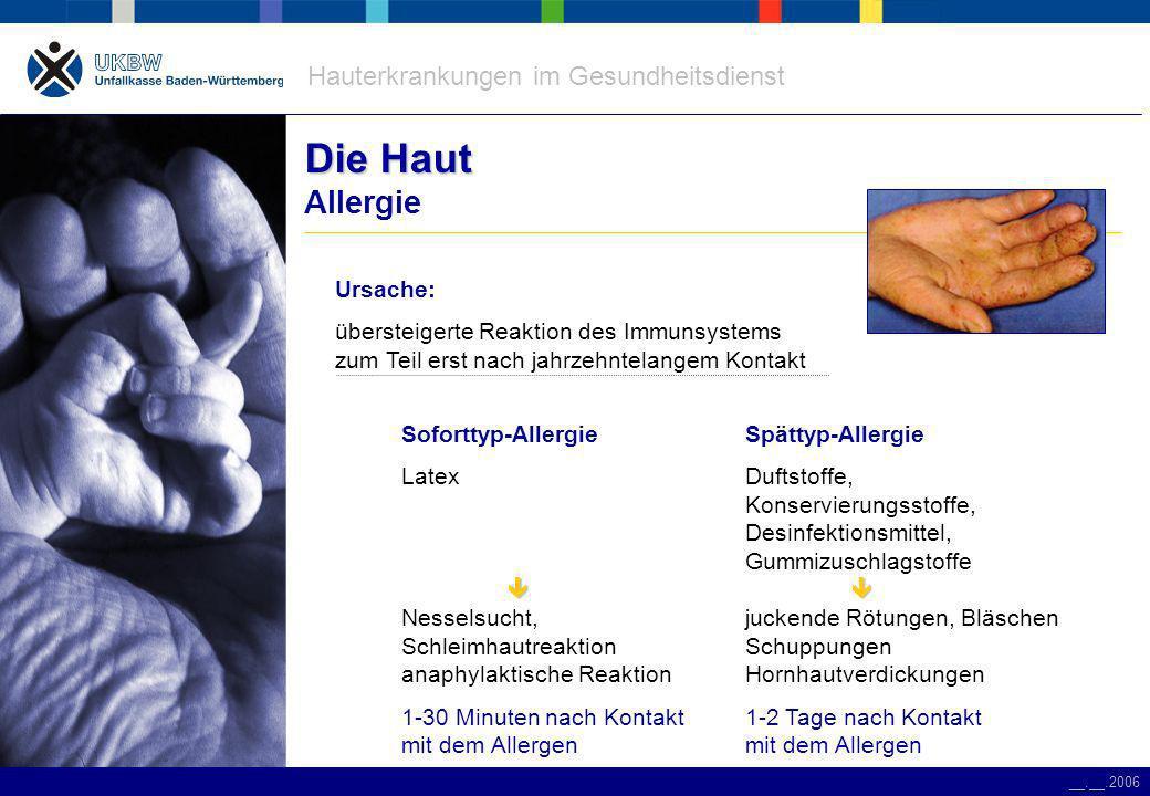 Hauterkrankungen im Gesundheitsdienst __.__.2006 Die Haut Die Haut Allergie Spättyp-Allergie Duftstoffe, Konservierungsstoffe, Desinfektionsmittel, Gummizuschlagstoffe juckende Rötungen, Bläschen Schuppungen Hornhautverdickungen 1-2 Tage nach Kontakt mit dem Allergen Soforttyp-Allergie Latex Nesselsucht, Schleimhautreaktion anaphylaktische Reaktion 1-30 Minuten nach Kontakt mit dem Allergen Ursache: übersteigerte Reaktion des Immunsystems zum Teil erst nach jahrzehntelangem Kontakt