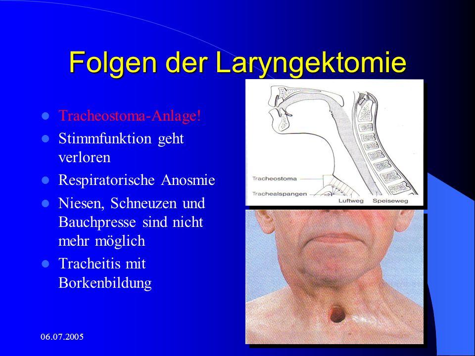 06.07.2005 Folgen der Laryngektomie Tracheostoma-Anlage! Stimmfunktion geht verloren Respiratorische Anosmie Niesen, Schneuzen und Bauchpresse sind ni