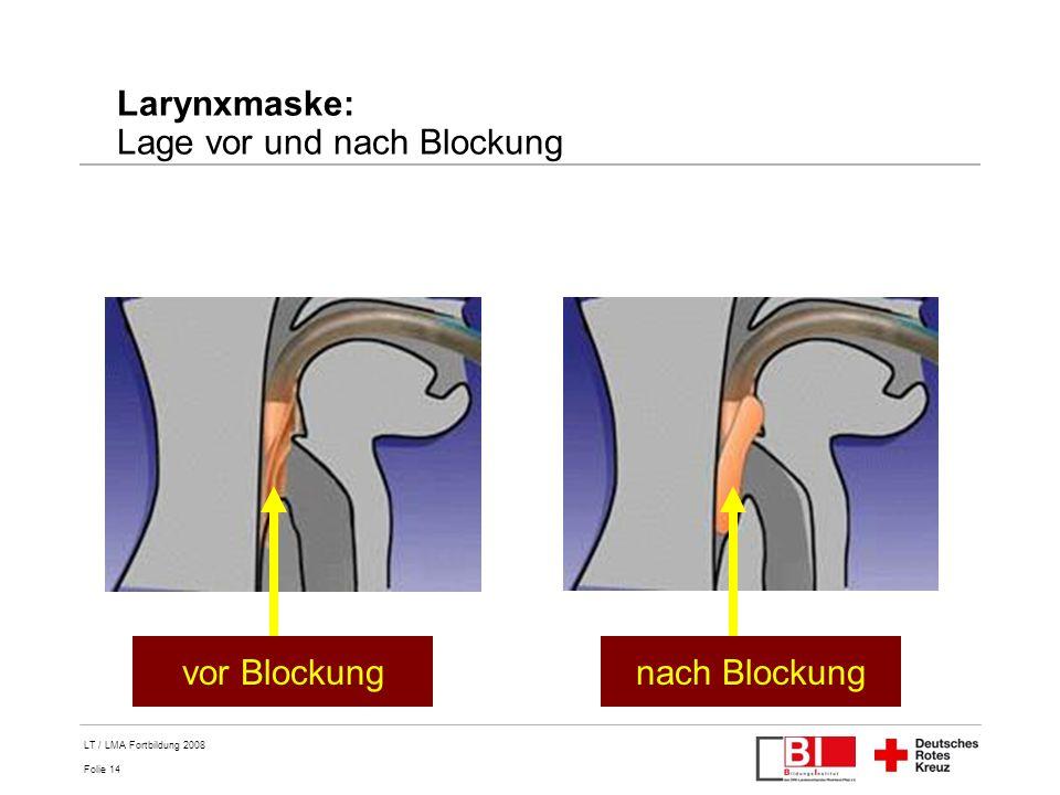 Folie 14 LT / LMA Fortbildung 2008 Larynxmaske: Lage vor und nach Blockung vor Blockungnach Blockung