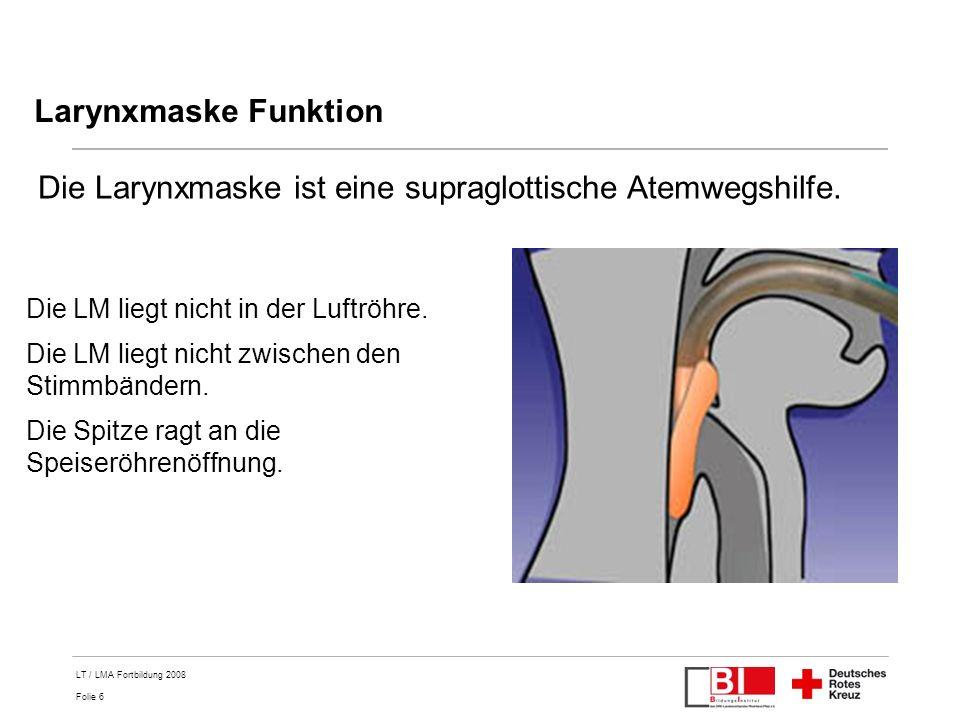 Folie 17 LT / LMA Fortbildung 2008 Guedeltubus ist bei Larynxmaske ungeeignet.