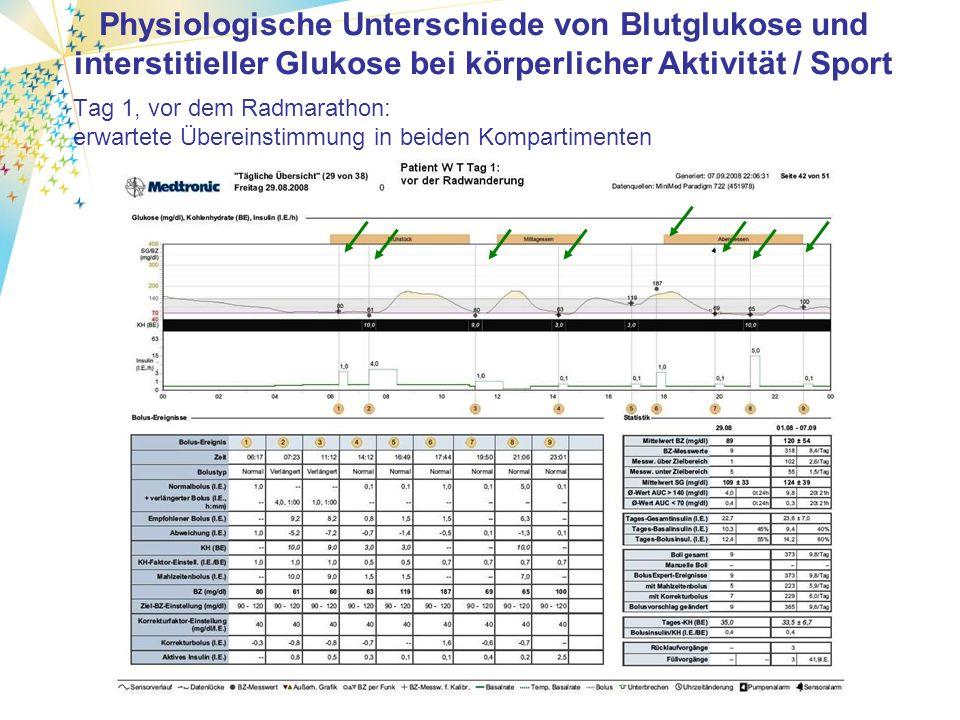 Glykämische Kontrolle nach drei gleichen Mahlzeiten und unterschiedlichem Bolus-Eß-Abstand mit Lispro (Patient mit Typ-1-Diabetes und CSII): 15 min SEA ohne SEA Bolus nach Essen der timelag lässt sich schlecht standartisieren.