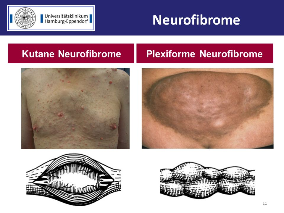 11 Neurofibrome Kutane NeurofibromePlexiforme Neurofibrome