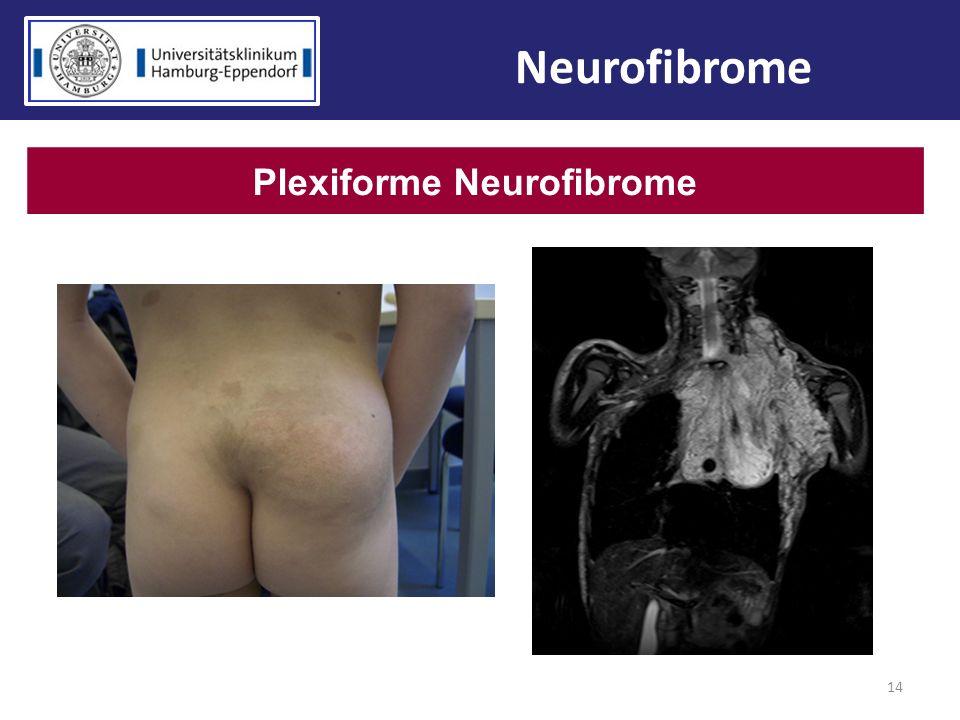 14 Plexiforme Neurofibrome Neurofibrome