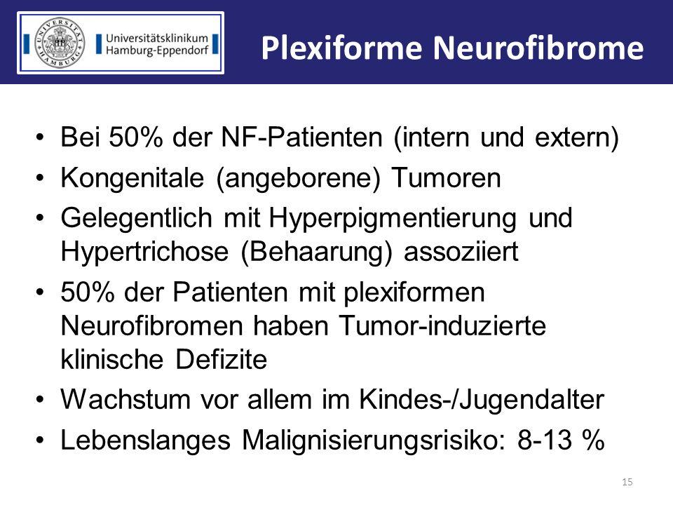Bei 50% der NF-Patienten (intern und extern) Kongenitale (angeborene) Tumoren Gelegentlich mit Hyperpigmentierung und Hypertrichose (Behaarung) assozi