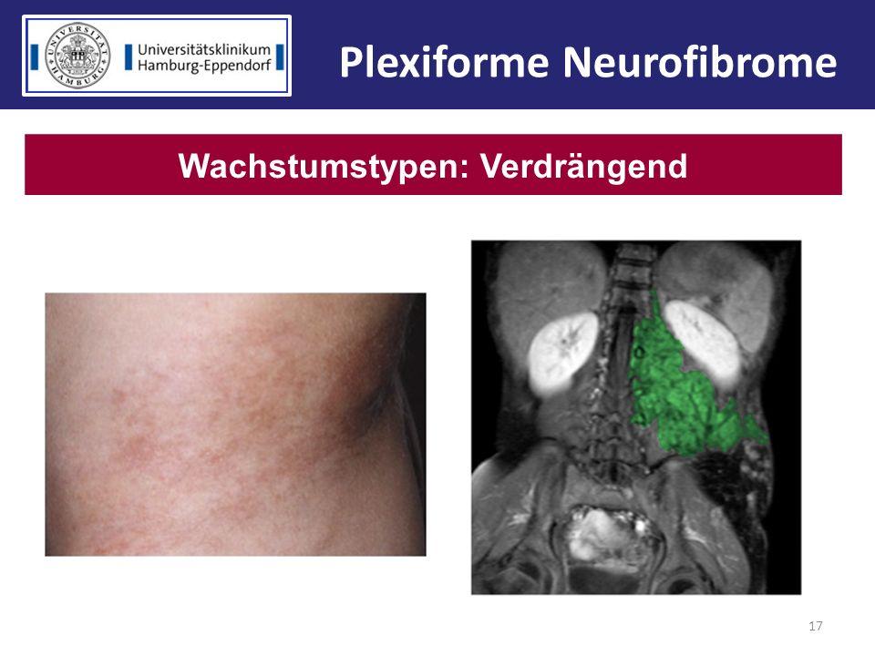 17 Wachstumstypen: Verdrängend Plexiforme Neurofibrome