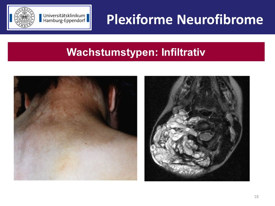 18 Wachstumstypen: Infiltrativ Plexiforme Neurofibrome