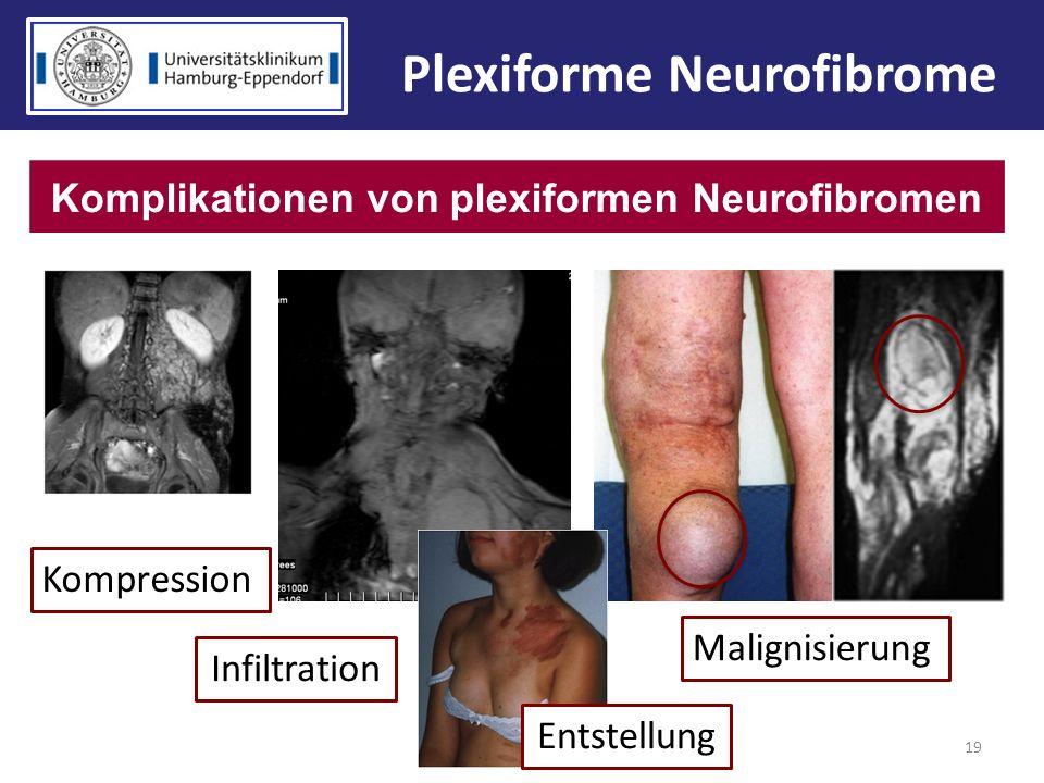 19 Plexiforme Neurofibrome Komplikationen von plexiformen Neurofibromen Kompression Infiltration Malignisierung Entstellung