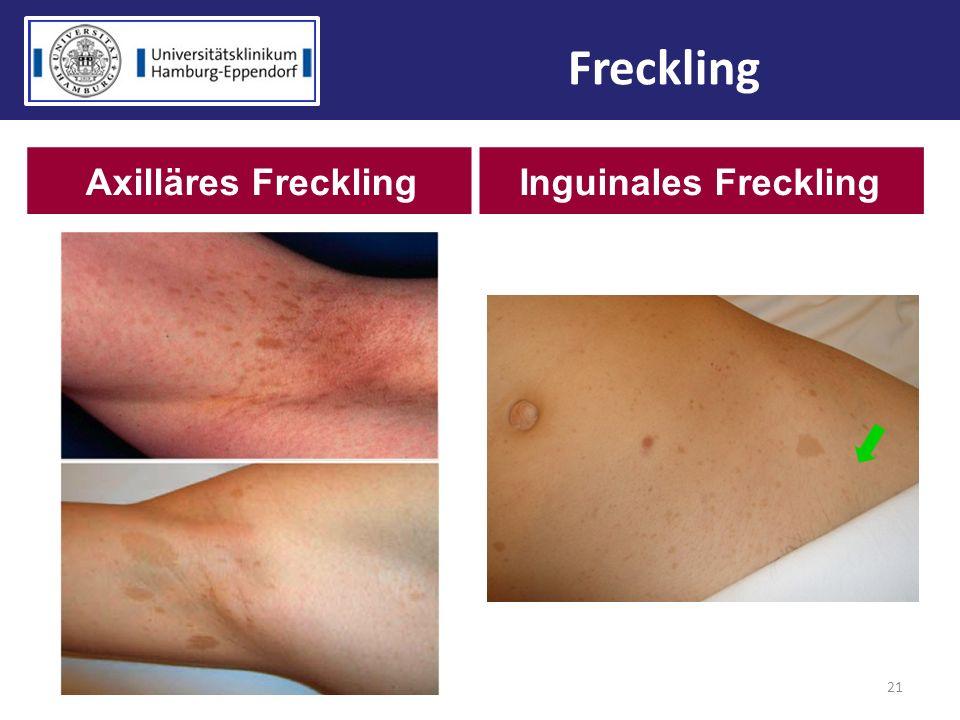 21 Freckling Axilläres FrecklingInguinales Freckling