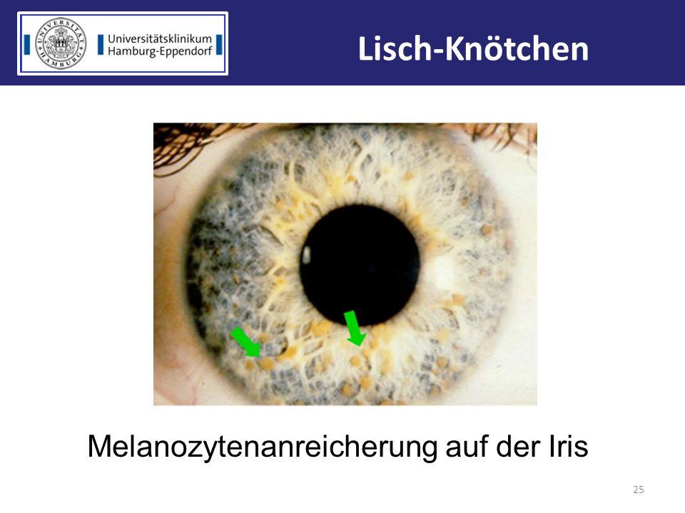Melanozytenanreicherung auf der Iris 25 Lisch-Knötchen