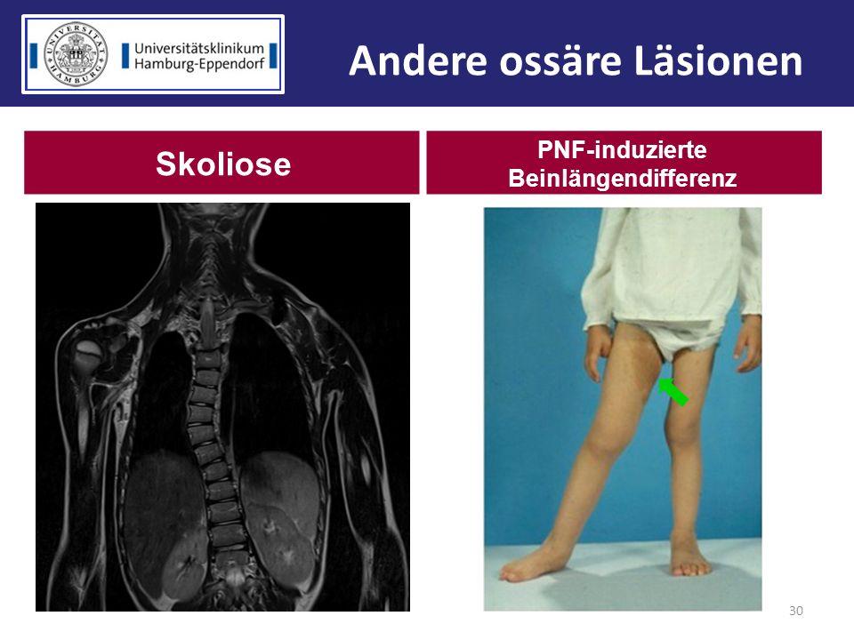 30 Andere ossäre Läsionen Skoliose PNF-induzierte Beinlängendifferenz