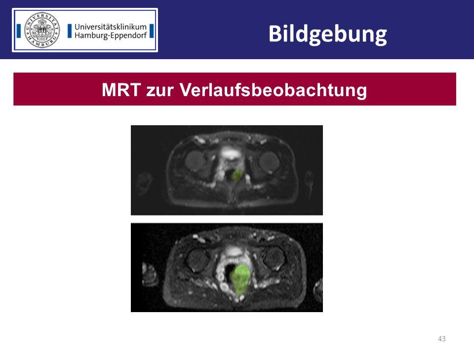 43 Bildgebung MRT zur Verlaufsbeobachtung