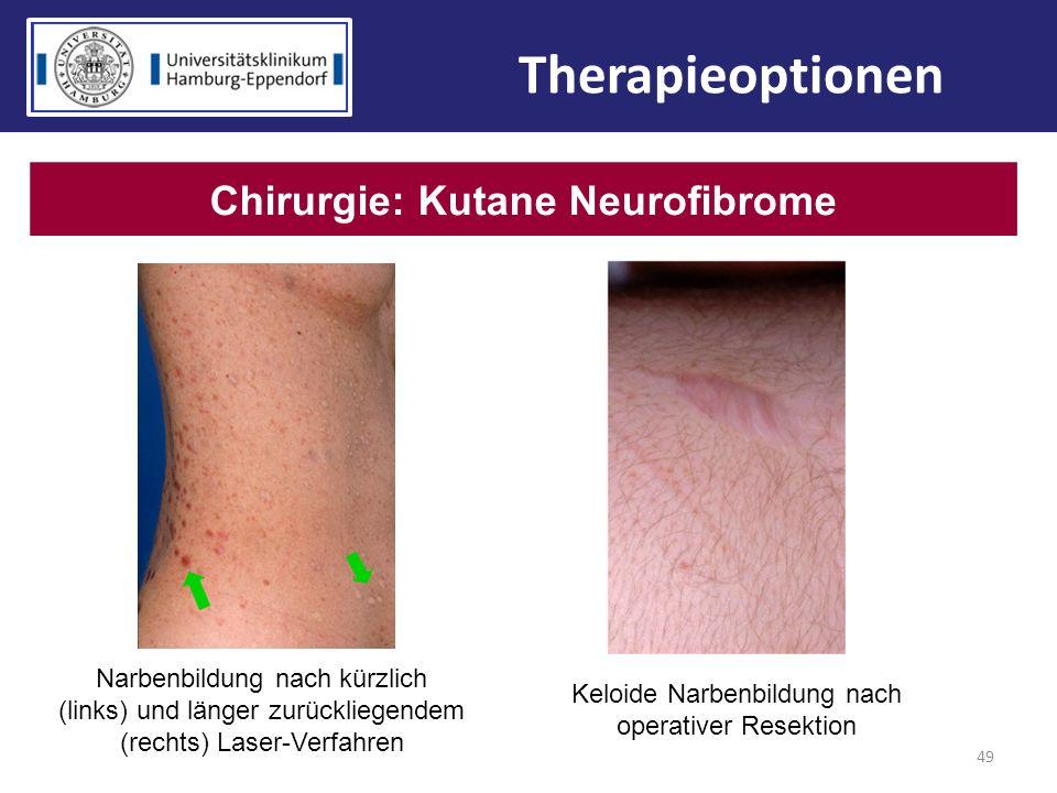 49 Therapieoptionen Chirurgie: Kutane Neurofibrome Narbenbildung nach kürzlich (links) und länger zurückliegendem (rechts) Laser-Verfahren Keloide Nar