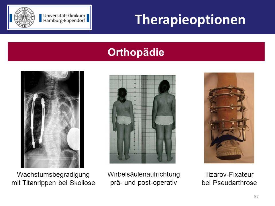 57 Orthopädie Ilizarov-Fixateur bei Pseudarthrose Wachstumsbegradigung mit Titanrippen bei Skoliose Wirbelsäulenaufrichtung prä- und post-operativ The