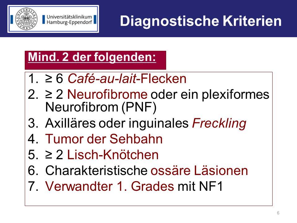 Diagnostische Kriterien 1. 6 Café-au-lait-Flecken 2. 2 Neurofibrome oder ein plexiformes Neurofibrom (PNF) 3.Axilläres oder inguinales Freckling 4.Tum