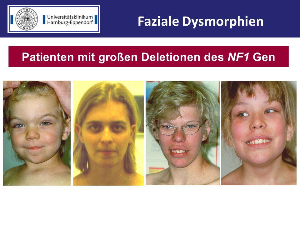Faziale Dysmorphien Patienten mit großen Deletionen des NF1 Gen