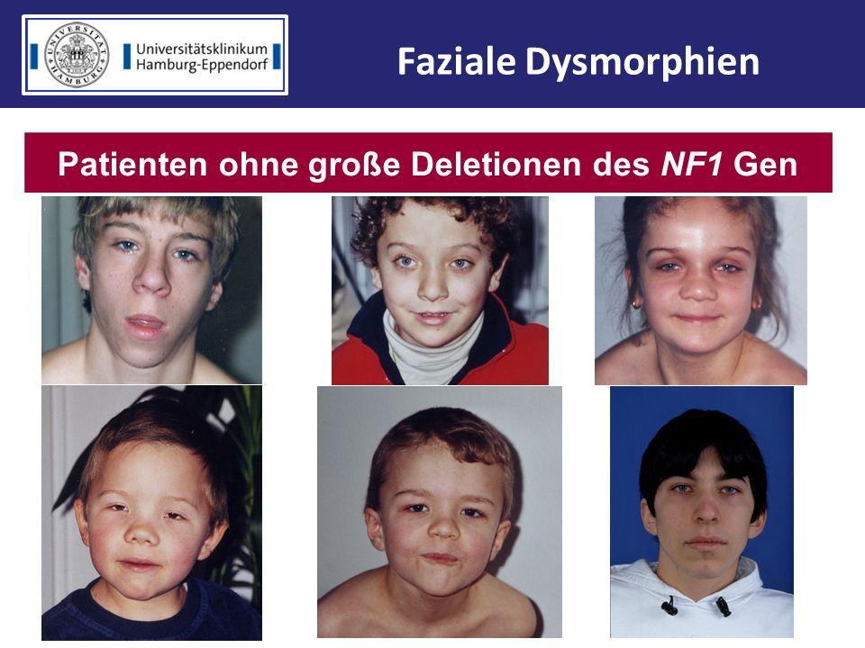 Patienten ohne große Deletionen des NF1 Gen Faziale Dysmorphien