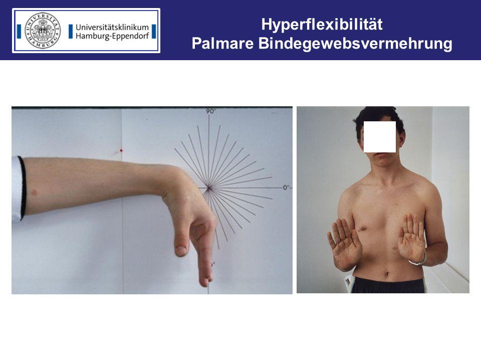 Hyperflexibilität Palmare Bindegewebsvermehrung