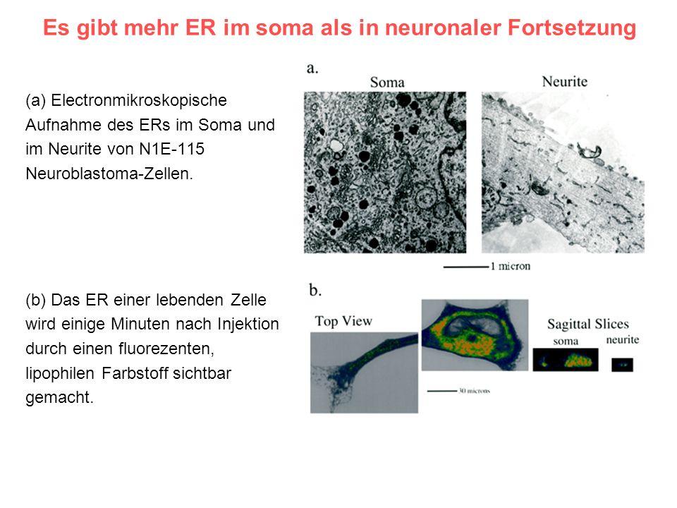 Es gibt mehr ER im soma als in neuronaler Fortsetzung (a) Electronmikroskopische Aufnahme des ERs im Soma und im Neurite von N1E-115 Neuroblastoma-Zel