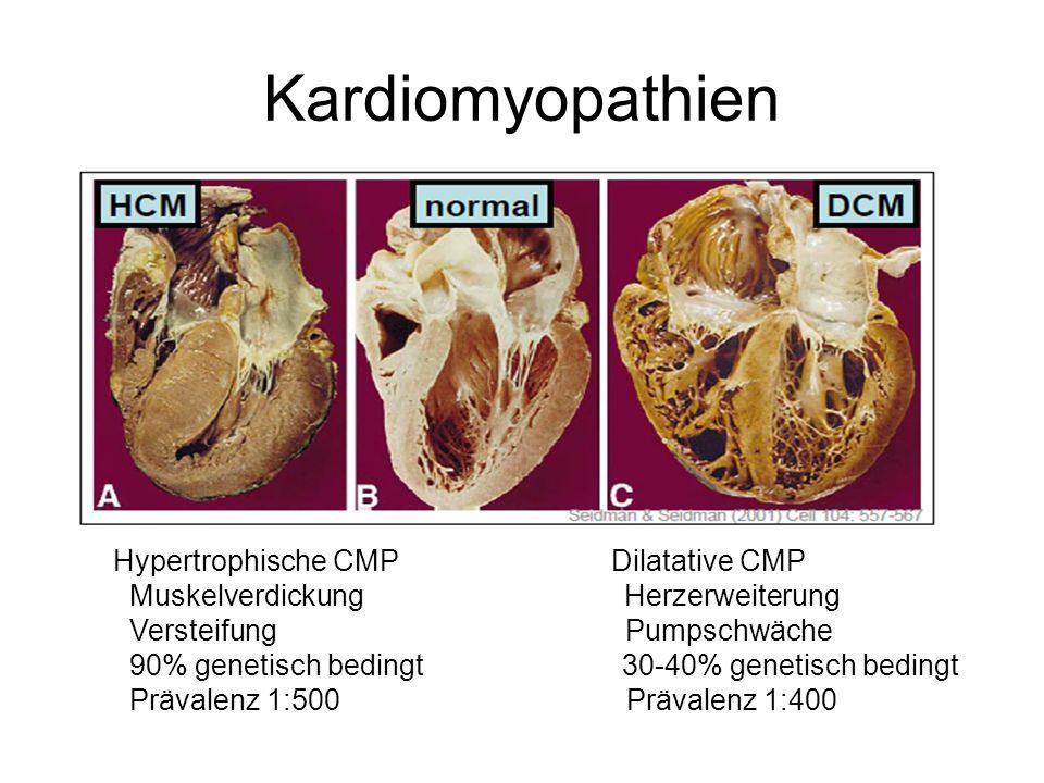 Kardiomyopathien Hypertrophische CMP Dilatative CMP Muskelverdickung Herzerweiterung Versteifung Pumpschwäche 90% genetisch bedingt 30-40% genetisch b