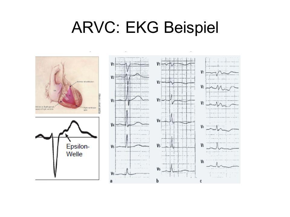 ARVC: EKG Beispiel