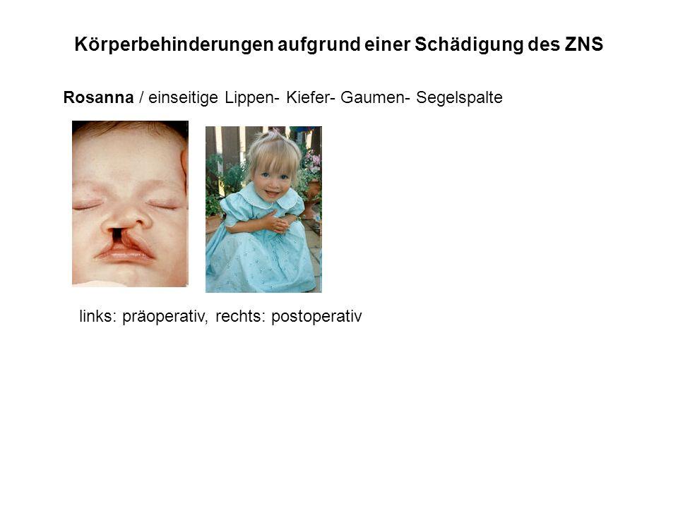 Körperbehinderungen aufgrund einer Schädigung des ZNS Rosanna / einseitige Lippen- Kiefer- Gaumen- Segelspalte links: präoperativ, rechts: postoperati