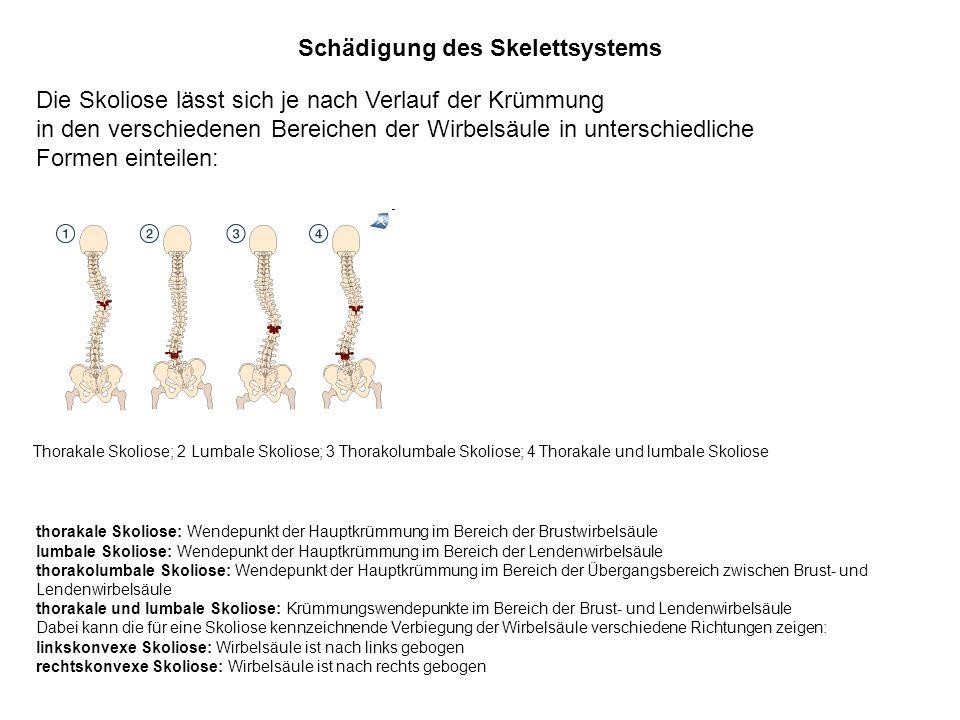 Schädigung des Skelettsystems Die Skoliose lässt sich je nach Verlauf der Krümmung in den verschiedenen Bereichen der Wirbelsäule in unterschiedliche