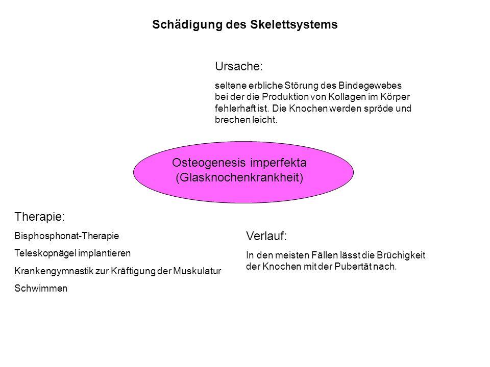Schädigung des Skelettsystems Osteogenesis imperfekta (Glasknochenkrankheit) Ursache: seltene erbliche Störung des Bindegewebes bei der die Produktion