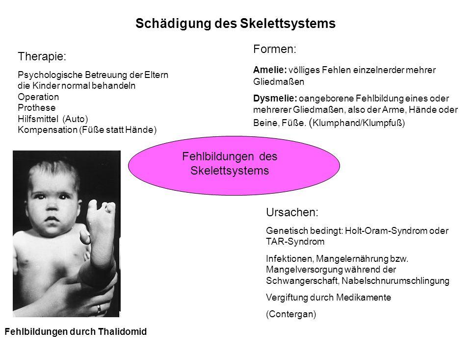 Schädigung des Skelettsystems Fehlbildungen des Skelettsystems Formen: Amelie: völliges Fehlen einzelnerder mehrer Gliedmaßen Dysmelie: oangeborene Fe