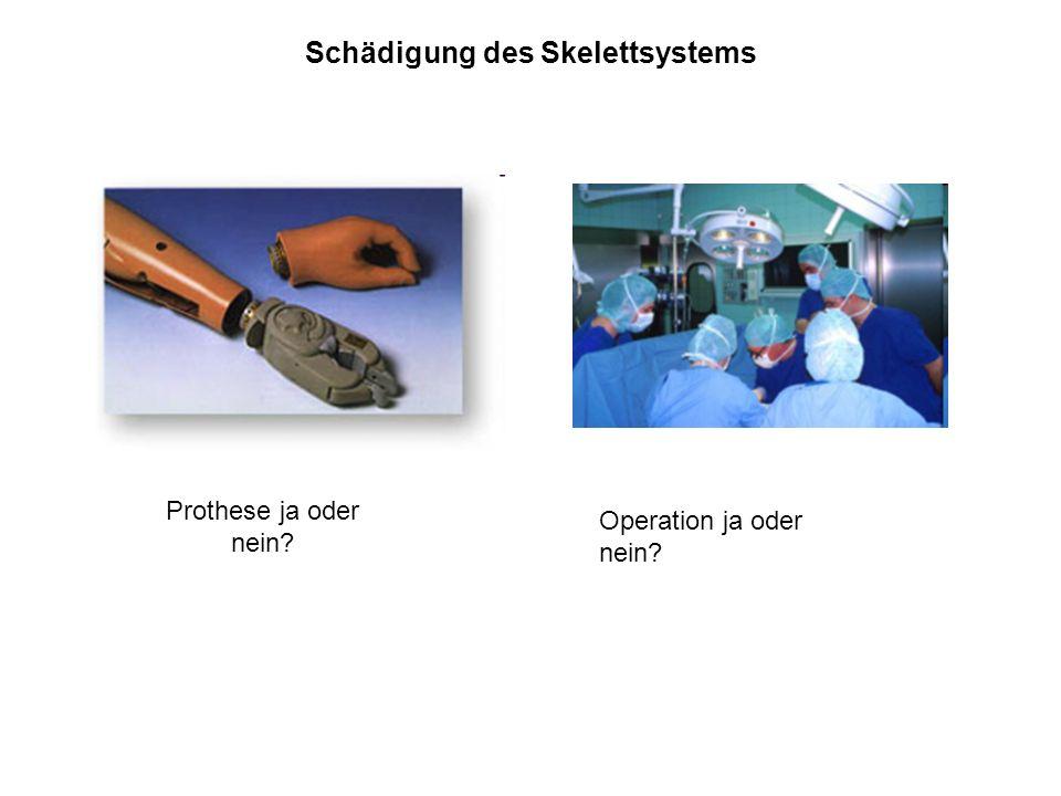 Schädigung des Skelettsystems Prothese ja oder nein? Operation ja oder nein?