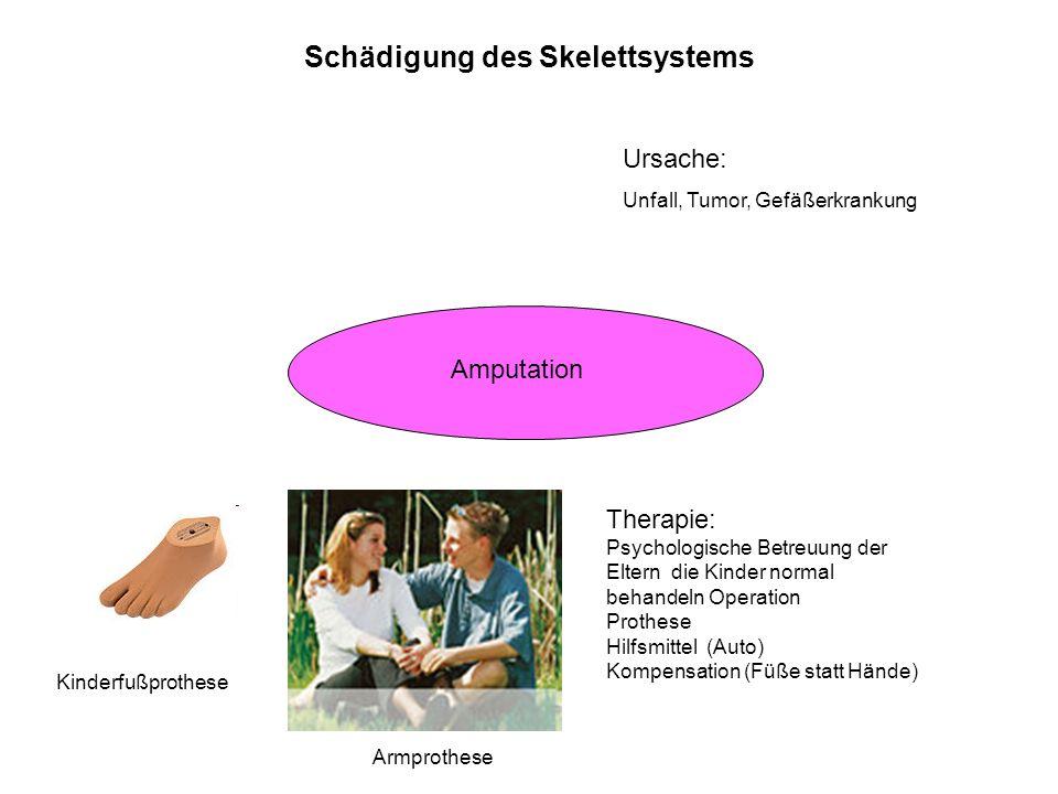 Schädigung des Skelettsystems Amputation Ursache: Unfall, Tumor, Gefäßerkrankung Therapie: Psychologische Betreuung der Eltern die Kinder normal behan