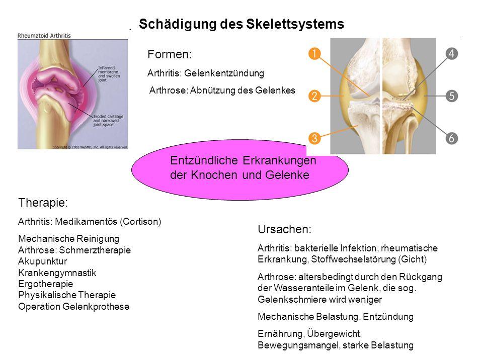 Schädigung des Skelettsystems Entzündliche Erkrankungen der Knochen und Gelenke Formen: Arthritis: Gelenkentzündung Arthrose: Abnützung des Gelenkes U